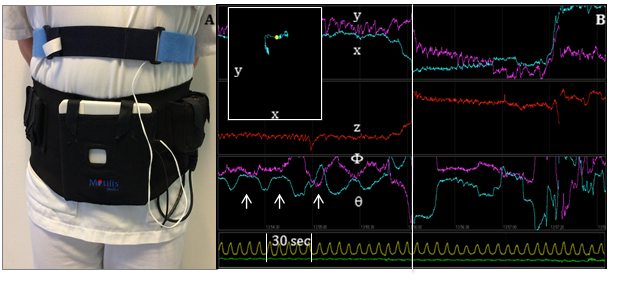 3D-Transit system. A. Sensors in the detector plate register electromagnetic signals from the ingested capsule. A chest worn respiration belt registers artifacts due to respiration. B. Graphs displaying position (x, y, z) and orientation (, ) of the capsule when passing the GI tract. Upper left window shows capsule position in x-y direction according to the external monitor. Arrows mark the contraction frequency of 3 per minute, characteristic of the stomach. Vertical line marks the shift in capsule position from stomach to small intestine. Yellow line marks respiration. Green line marks accelerometer.